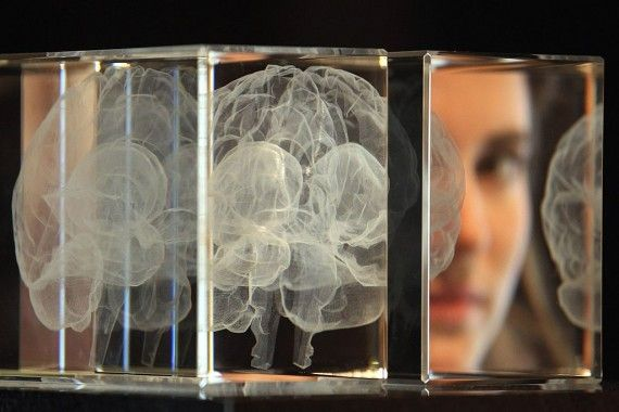 """'The Allen Brain Atlas represents an incredibly detailed collection of magnetic resonance images (MRI) and diffusion weighted imaging with an unprecedented level of resolution. These two imaging techniques captured the brain's structure and the way the fibers connect in the brain, and also provide detailed cellular-level mapping.' - Catherine Rice     Detailed """"Atlas"""" of Human Brain Brings us Closer Than Ever to Understanding Ourselves:"""
