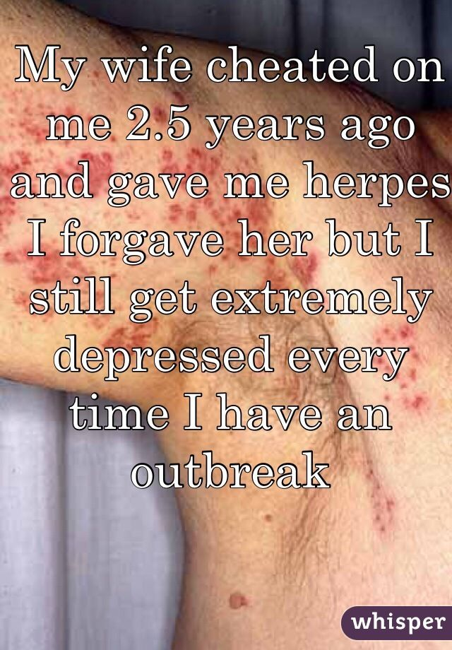 My wife gave me herpes 2