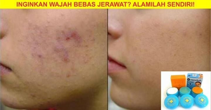 Dr yanhee skincare a solution for acne skin contact 6011