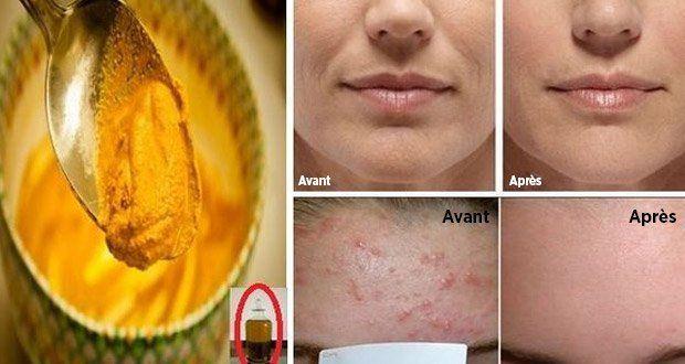 Voici une recette de masque de beauté à base de curcuma qui possède des bienfaits étonnants sur la peau.