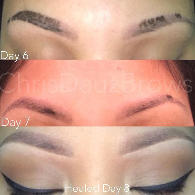 My gorgeous client @lynstagram.32  sent me her healed results  this is just her first session. ✨✨✨Note: The scabbing is completely normal, typically clients will see scabbing anywhere from day 4-7, everyone skin Heals differently. At first it will much lighter in between the scabs(normal) don't freak out, keep in mind the brows take about 14 full days to fully heal. Don't pick or wet the brows as much as possible within the healing stages. Better aftercare better results…