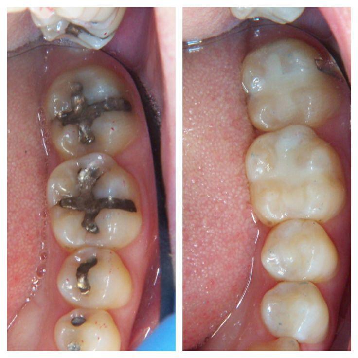 Amalgam v.s Composite fillings Children's Dental