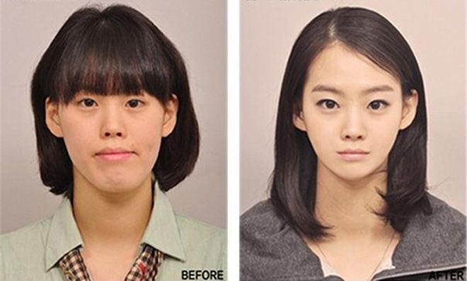 Korean face plastic surgery – chin and nose – before and after