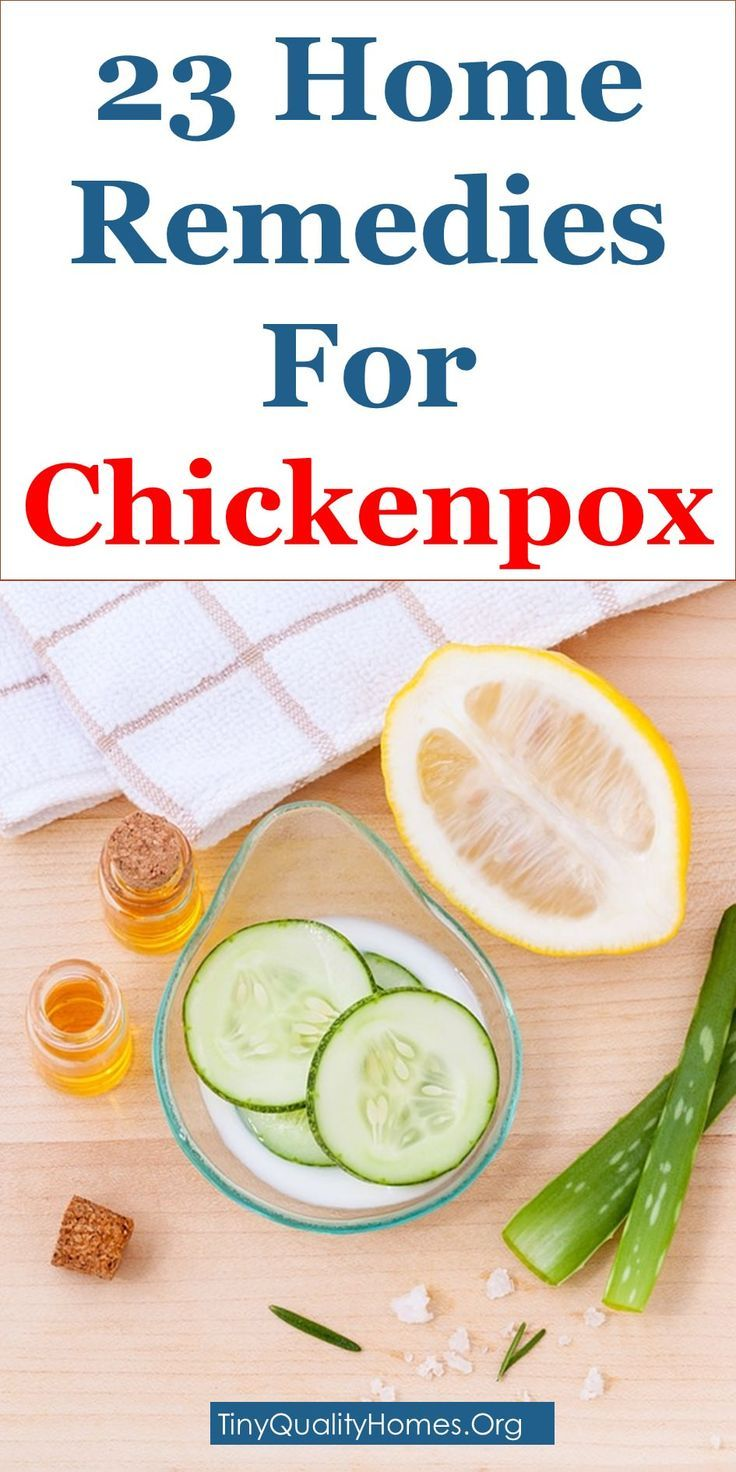 small resolution of 23 effective home remedies for chickenpox how many days to recover how to cure