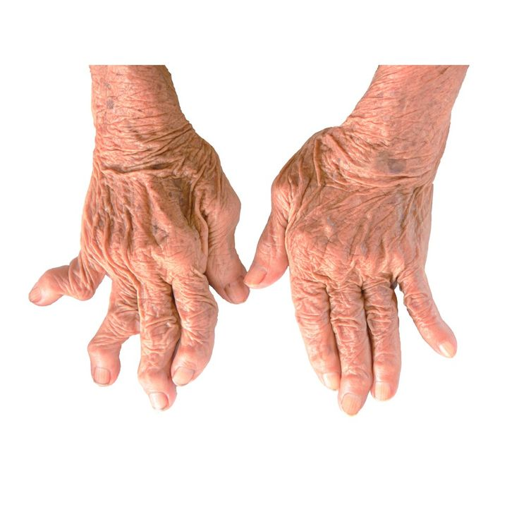 Case studies – diet changes reverse rheumatoid arthritis This is the first of a series of posts where I will be posting results from my research project. In this post I look at documented case stud…