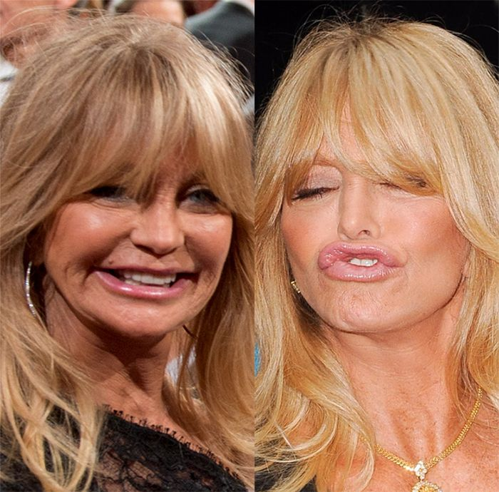 The 70 Year Old Goldie Hawn Is Rumored To Have Plastic