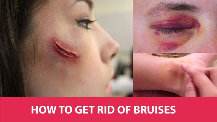 How to Get Rid of Bruises On Face Leg Hand Faster - Health Beat