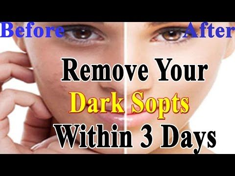 remove brown spots with this simple ingredient  saturday