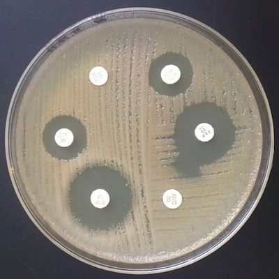Tratamiento: B. cepacia es a menudo resistente a los antimicrobianos y no responde al tratamiento con aminoglucósidos, ureidopenicilinas o ceftazidima pese a ser sensible in vitro, la tasa de resistencia a los ß lactámicos es generalmente alta, con la excepción de meropenem que tendría buena actividad in vitro. La susceptibilidad de las quinolonas, específicamente ciprofloxacina, es variable pero la resistencia a ella es inducible. B. cepacia es susceptible in vitro a cloranfenicol y…