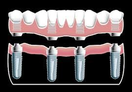 The dental implants technology is not new anymore. Thanks to the distinct benefits over removable bridges and dentures, a number of people go for teeth implants in Houston. http://houstondentalimplants.blogspot.com/2013/03/conventional-dental-implants-or-all-on.html