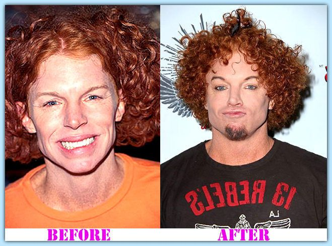 Carrot Top Plastic Surgery Before And After Carrot Top