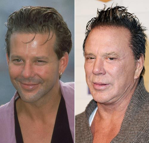 Mickey Rourke Plastic Surgery Before & After - http://plasticsurgerytalks.com/mickey-rourke-plastic-surgery/