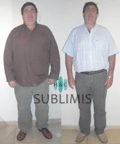 Cirugia de la Obesidad en #Argentina - https://www.sublimis.com/fotos-antes-despues-cirugia-metabolica.html