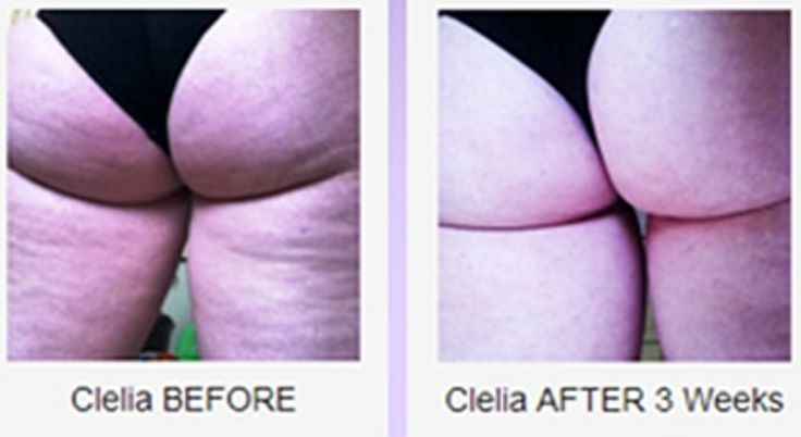 Symulast Method Review: Cellulite Before And After Pictures