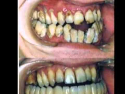 Resultado de imagen para dientes podridos