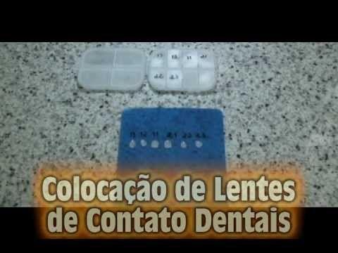 Lentes de Contato Dentais em Porcelana  - Laminados