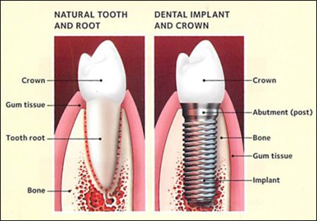 Natural tooth and root & Dental Implant and crown