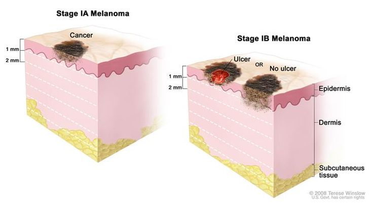 Two-panel drawing of stage I melanoma. The first panel shows a stage IA tumor that is not more than 1 millimeter thick, with no ulceration (break in the skin). The second panel shows two stage IB tumors. One tumor is not more than 1 millimeter thick, with ulceration, and the other tumor is more than 1 but not more than 2 millimeters thick, with no ulceration. Also shown are the epidermis (outer layer of the skin), the dermis (inner layer of the skin), and the subcutaneous tissue below the…