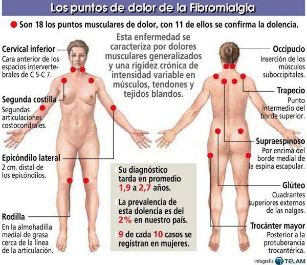 Cuáles son los síntomas de la fibromialgia