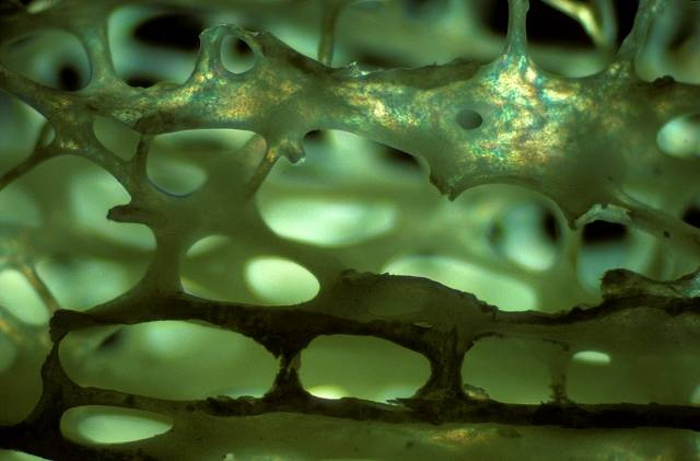 Cancellous bone (spongy bone) from distal human femur | Bone | Nikon Small World