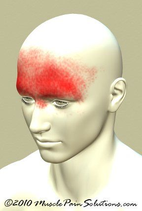 trigger points for frontal headache