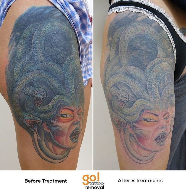679 best images about tattoo removal in progress on for How much does a thigh tattoo cost