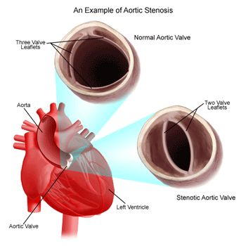 Aortic Valve Leaflet Anatomy | ... valve defect in which the aortic valve has only two leaflets, not