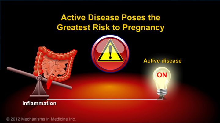 However, active disease poses the greatest risk to pregnancy, not the risk from IBD medications.slide show: optimizing pregnancy outcomes with ibd. this slideshow describes issues females with ibd should consider before getting pregnant. the fertility of patients with ibd and healthy people is compared, and the ways in which ibd may affect a pregnancy are described. the slideshow emphasizes the need to establish remission before becoming pregnant and to maintain remission during pregnancy by…