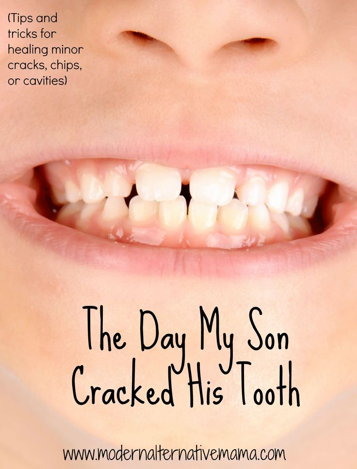 cracked tooth pinterest