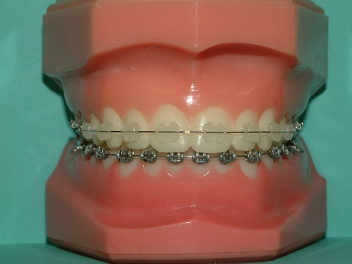 Clear Braces Pictures