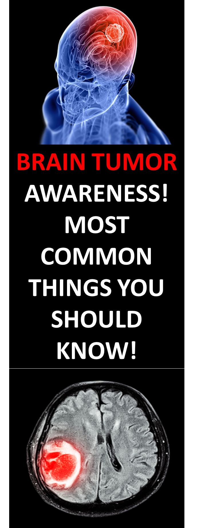 A brain tumor diagnosis can sound like a life-threatening situation. But although the symptoms of most brain tumors are the same, not all tumors are malignant. In fact, meningioma is the most common brain tumor...