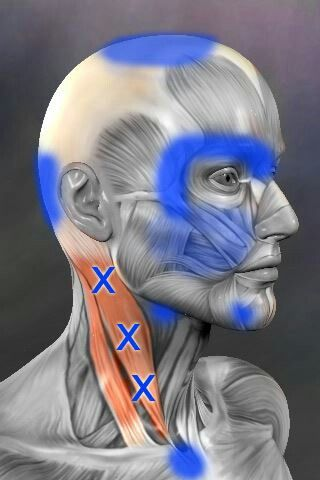 Trigger Points (the X's) in the front of the neck (SCM Muscle) that can contribute to headaches and other pain (the blue areas).