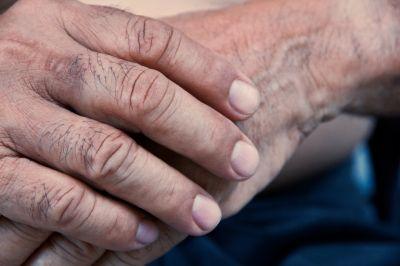 Finger Splints Worn at Night can Ease Arthritis Pain