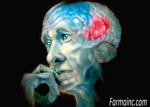Болезнь Паркинсона или паркинсонизм была описана как дрожательный паралич еще в 1817 году врачом Джеймсом Паркинсоном. Это заболевание нервной системы, которое