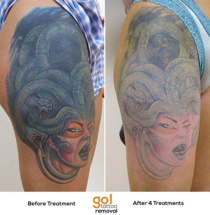 This has been a major project for us and we 39 re beyond for Picosure tattoo removal maryland