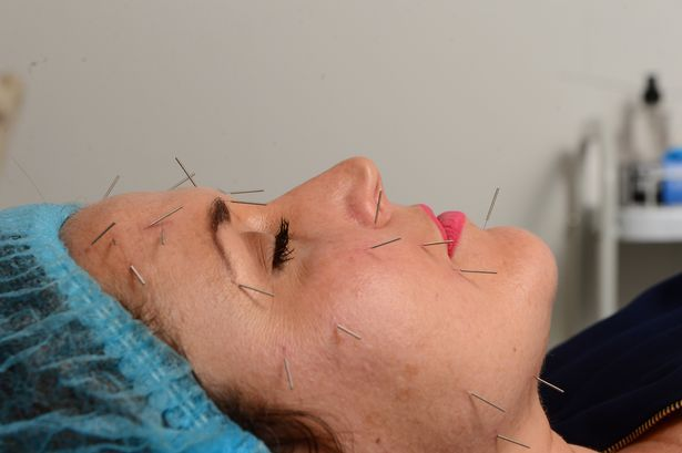 Cosmetic Acupuncture! Jennifer Hyland having acupuncture treatment by sports therapist Sara Lanzas.