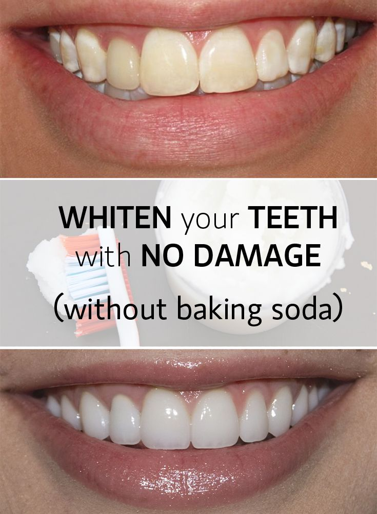 To whiten teeth while still applying no damage isn't an easy thing. But sometimes, the solution stays in the most unexpected... ingredients