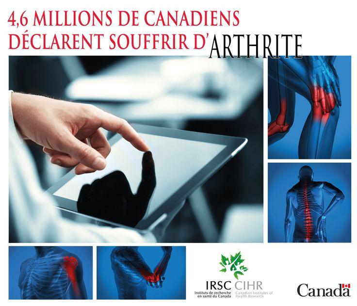 La ministre de la Santé Rona Ambrose lance un programme novateur de dépistage de l'arthrite chez Shoppers Drug Mart/Pharmaprix : http://shoppersdrugmart.fr.mediaroom.com/2013-09-09-La-ministre-de-la-Sant-Rona-Ambrose-lance-un-programme-novateur-de-d-pistage-de-larthrite-chez-Shoppers-Drug-Mart-Pharmaprix
