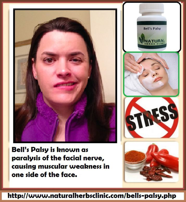 After only 6 weeks of facial exercises, she was able to retract her lip 50 percent more than at any time prior to the Best Treatment for Bell's Palsy. In short, she was on her way to smiling after only 6 weeks.... https://naturalcureproducts.wordpress.com/2017/04/20/bells-palsy-treatment-facial-exercises/