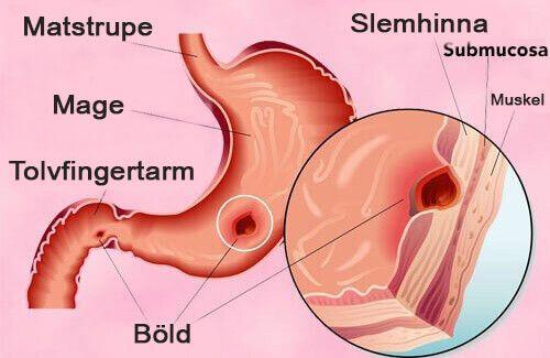Här delar vi med oss av några effektiva naturliga huskurer för magsår. Din sveda och värk kommer snart att höra till det förflutna.