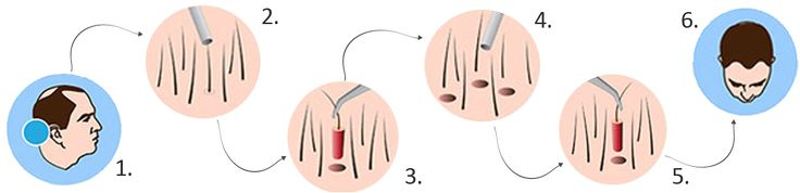 There can be various causes for baldness of the person but generally person detects this problem after the loss of 50% hair. Alopecia generally occurs due to the presence of DHT that is vulnerable for the scalp hair. when the enzymes react with the androgens it covert the testosterone  into the Di hydro testosterone that effect the life cycle of hair follicles and push them to the resting phase and ultimately to fall of them that cause the alopecia in patches or completely.