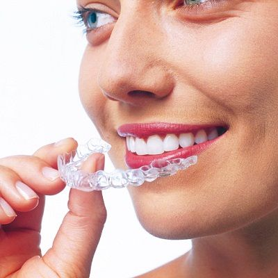 Braces Treatment in New Delhi  Are you looking for Braces treatment in New Delhi? 32 Smile Stone Dental Clinic are the  best Braces treatment in New Delhi. We offer best price and low cost of braces treatment in New Delhi India.