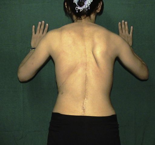 Type I scapular dyskinesis: inferior angle is winging with isometric contraction