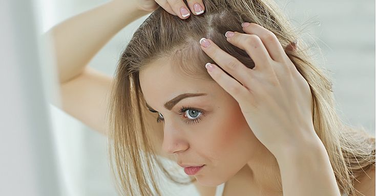 An itchy scalp and white flakes on your shoulders can be embarrassing and uncomfortable. Here's how to deal. - Fitnessmagazine.com