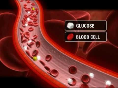 What is Type 1 Diabetes? http://www.clearlyhealth.com