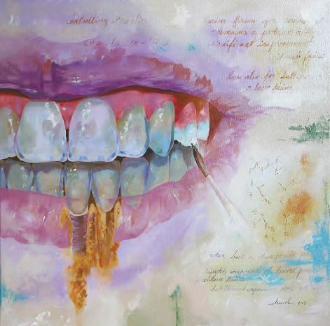 Before emigrating from Cuba, studying dental technology and becoming the owner of MardentProsthetics Dental Lab in Miami, Marcel Fundora was a painter; his artwork appeared in exhibits in New York, Miami...