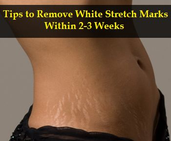 Home Remedies to Get Rid of Stretch Marks - Tips to Remove Stretch Marks Within 2 Weeks Naturally - One Health Tips