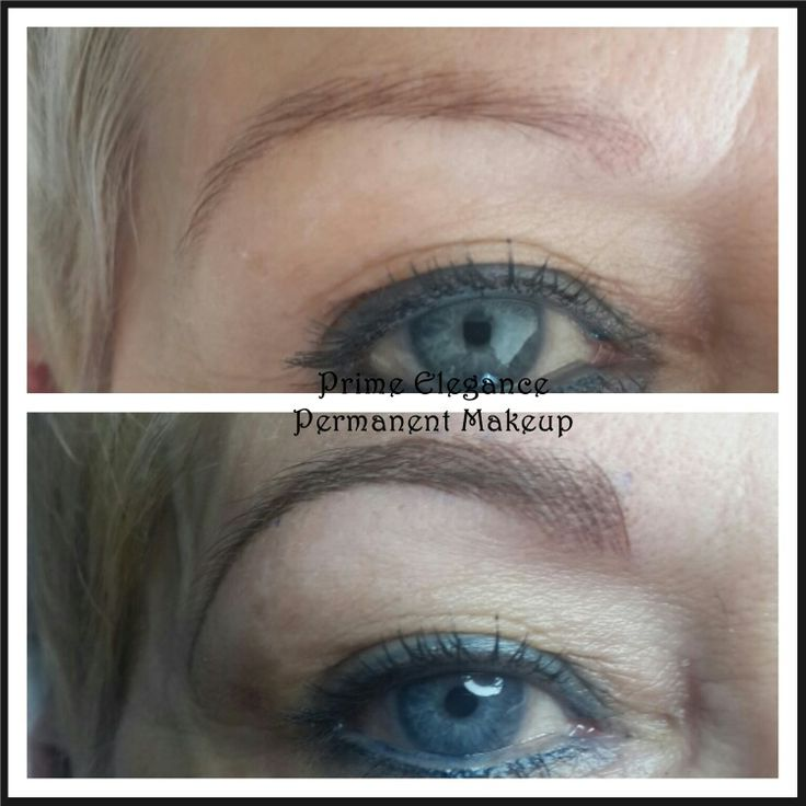 Microblading immediately after the first procedure. After the first treatment, the colour will appear darker and bolder than what is expected at the final outcome. The shape may also appear thicker than what is expected for the final outcome. This is a two stage process and with healing the colour and shape will soften and fade. A touch up is necessary to perfect the process. At the touchup, we can decide to go darker, add more hairs and perfect the shape