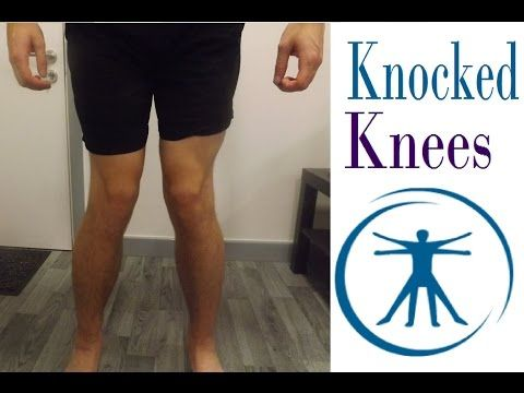How To Fix Knocked Knees (Genu Valgum) With Correction Exercises - YouTube