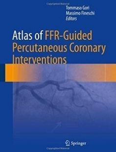 Atlas of FFR-Guided Percutaneous Coronary Interventions free download by Tommaso Gori Massimo Fineschi (eds.) ISBN: 9783319471143 with BooksBob. Fast and free eBooks download.  The post Atlas of FFR-Guided Percutaneous Coronary Interventions Free Download appeared first on Booksbob.com.